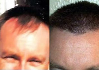 Before And After, 3000 Follicular Units