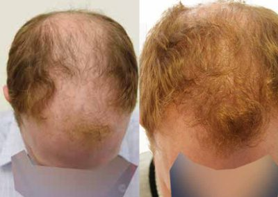 Before And After FUE Procedure, 30 Year Old Male, 3000 Grafts