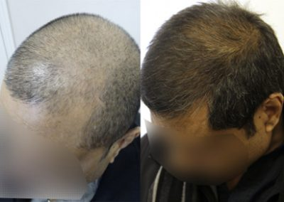 Before And After FUE Procedure, 40 Year Old Male, 3000 Graft