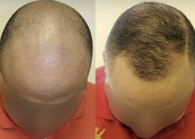 Before And After FUE Procedure, 3000 Grafts