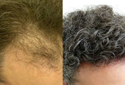 Before And After Graft Transplant, 39 year old male, 3000 grafts