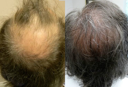 Before And After, 56 year old male, 3000 grafts