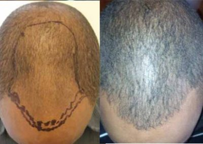 Before And After FUE Procedure, 3003 Grafts