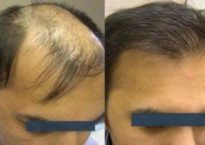 Before And After Graft Strip Procedure, 32 year old male, 3800 graft strip