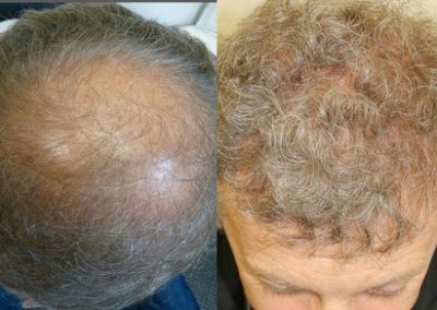 Before And After Grafts Strip Surgery, 56 Year Old Male, 3200 Grafts