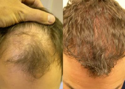 Before And After, 33 year old male,  200 grafts