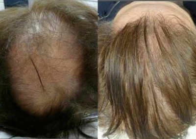 Before And After FUE Procedure, 3400 Grafts