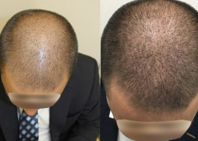 Before And After FUE Procedure, 35 year old male, 3000 grafts