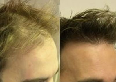 Before And After Graft Strip Procedure, 35 year old male, 2000 graft strip