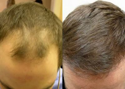 Before And After Hair Line Procedure, 35 year old male, 2500 grafts