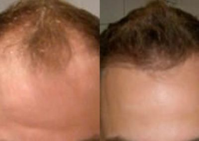 Before And After, 35 year old male, 3000 grafts