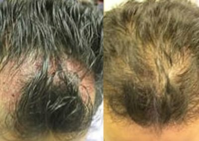 Before And After Graft Strip Procedure, 35 year old male, 1200 grafts