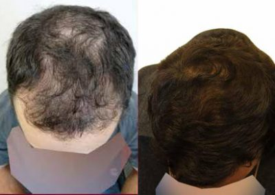 Before And After Graft Strip Procedure, 32 Year Old Male, 3500 Grafts