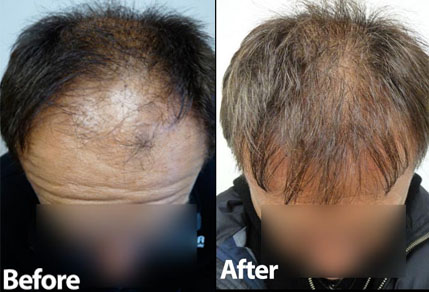 Before and After Graft Strip Surgery, 3500 Grafts