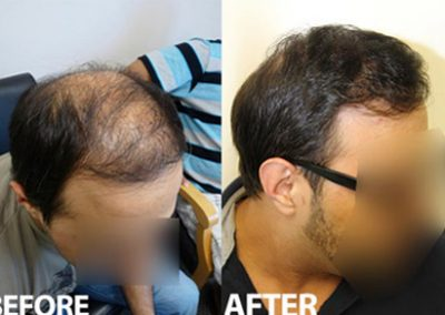 Before And After, 3500 Grafts