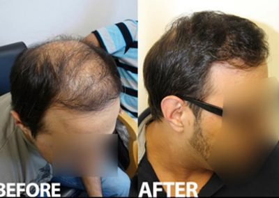 Before And After Crown Procedure, 3500 Grafts