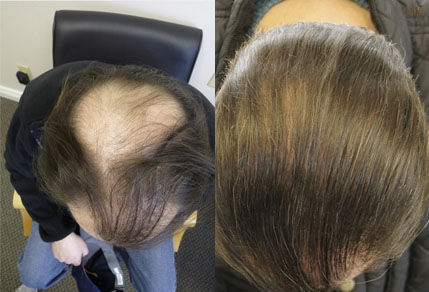 Before And After Graft Strip Procedure, 46 year old Male, 3700 Grafts