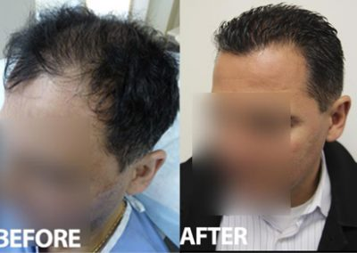 Before And After FUE Procedure, 45 year old male, 3954 grafts