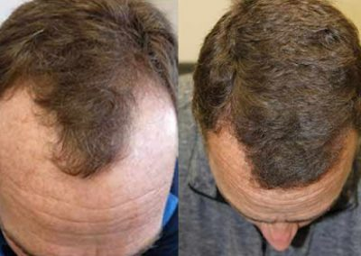 Before And After FUE Procedure, 40 Year Old Male