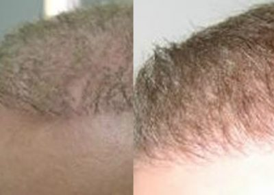 Before And After Graft Strip Procedure, 40 year old male, 1500 grafts