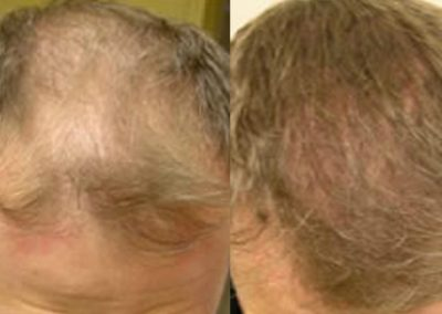 Before And After, 40 year old male, 2000 grafts