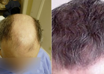 Before And After Graft Strip Surgery, 4000 Grafts