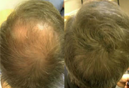 Before And After, 53 year old male, 4000 grafts
