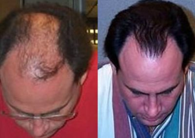 Before And After, 40 year old male, 4000+ grafts