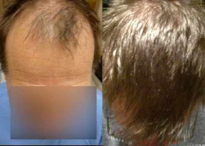 Before And After Hair Restoration Procedure, 48 Year Old Male, 4025 Grafts