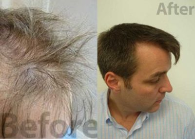 Before And After Hair Restoration, 42 Year Old Male, 3700 Grafts