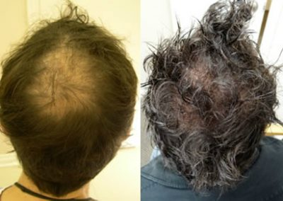 Before And After Crown Procedure, 42 year old male, 1500 grafts