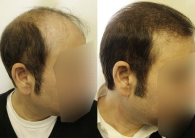 Before And After Graft Strip Surgery, 44 Year Old Male, 3900 Grafts