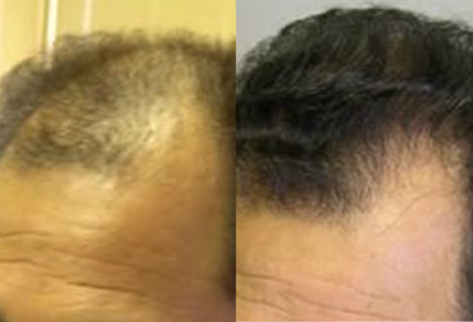 Before And After graft strip Procedure, 45 year old male, 2500 grafts