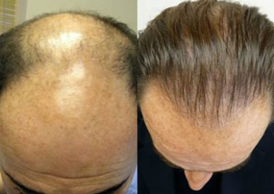 Before And After, 45 year old male, 3200 grafts