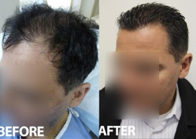 Before And After Crown Procedure, 45 year old male, 3954 grafts
