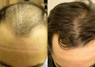 Before And After, 42 year old male, 4500 grafts