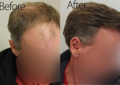 Before And After Graft Strip Surgery, 50 Year Old Male, 3078 Graft