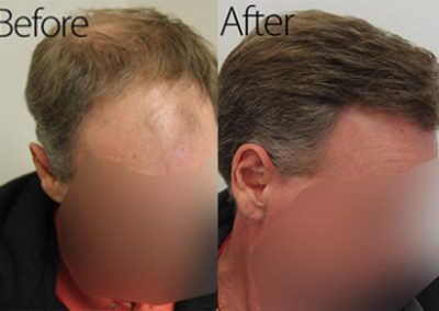 Before And After Graft Strip Surgery, 50 Year Old Male, 3078 Graft Strip