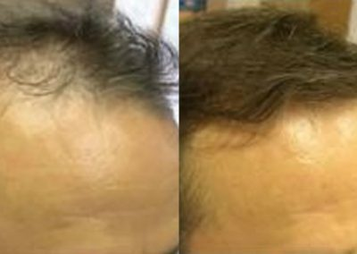 Before And After, 50 year old man, 3000 grafts