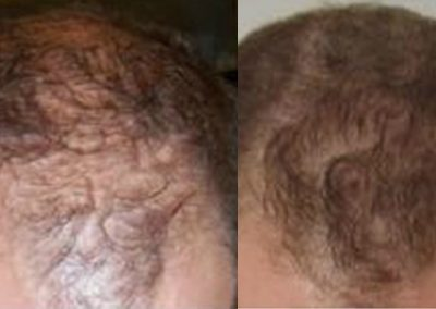 Before And After FUE, 560 grafts