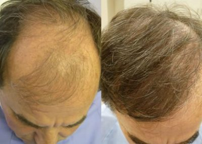 Before And After, 58 year old male, 4000 grafts