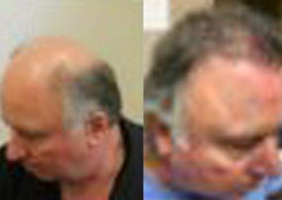 Before and After Graft Strip Procedure, 60 Year Old Man, 3000 Grafts