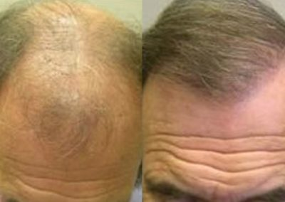 Before And After Graft Strip Procedure, 60 year old male, 2500 grafts