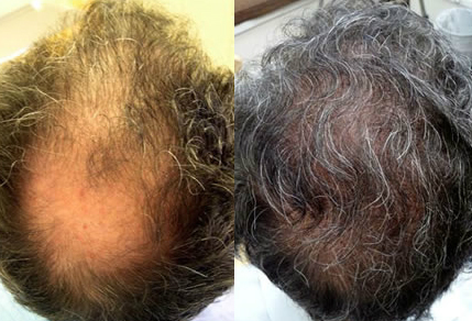 Before And After, 61 year old male, 3300 grafts