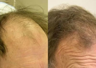 Before And After, 65 year old male, 2200 grafts
