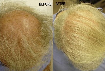 Before And After, 70 Year Old Male, 5200 Grafts