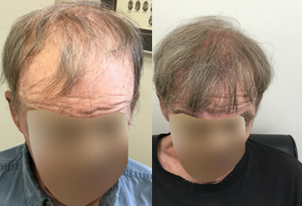 Before And After graft strip procedure, 70 year old Male, 3000 grafts