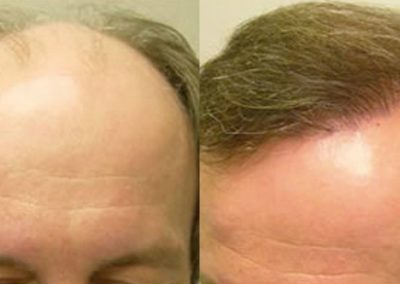 Before And After, 38 year old male, 7600 grafts