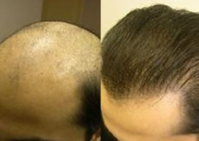 Before And After, 35 year old male, 8400 grafts