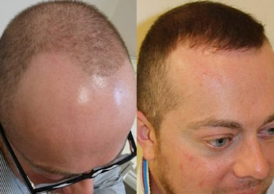 Before And After Hairline Transition,  2000 Grafts